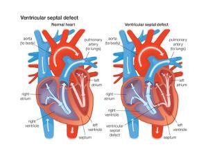 Ventricular Septal Defect by Encyclopaedia Britannica