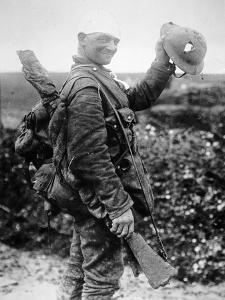 British Soldier with Bandaged Head Shows the Steel Helmet That Saved His Li by English Photographer