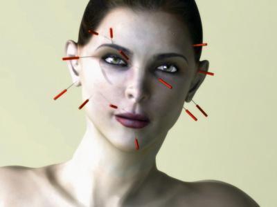 https://imgc.artprintimages.com/img/print/facial-acupuncture-artwork_u-l-pzfosk0.jpg?p=0