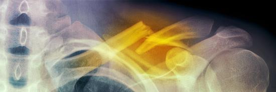 Fractured Collar Bone, X-ray-Du Cane Medical-Photographic Print