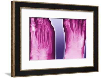 Fractured Foot, Coloured X-ray-Miriam Maslo-Framed Photographic Print