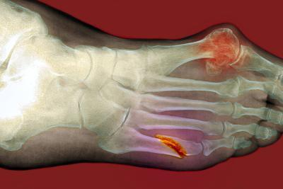 Fractured Foot-Du Cane Medical-Photographic Print