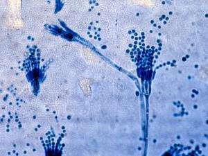 Penicillium Fungus Culture from a Human Patient, Lactophenol Ccotton Blue Preparation by Gladden Willis