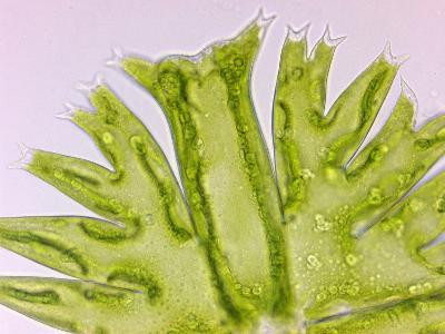 Green Algae Micrasterias, a Flat Placoderm Desmid with Highly Lobed Semicells-Peter Siver-Photographic Print