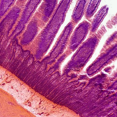 Microscopic Image at 100X of a Small Intestine Showing the Villi by Greg Dale