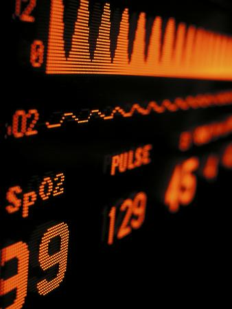 Spo2, Dissolved Oxygen, and Cardiac Information on a Medical Monitor