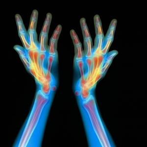 Hands, X-ray by Gustoimages