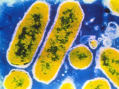 Haemophilus Influenzae Bacteria--Photographic Print