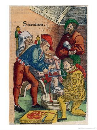 Amputation, Illustration from Feldtbuch Der Wundartzney by Hans Von Gersdorff, c.1540