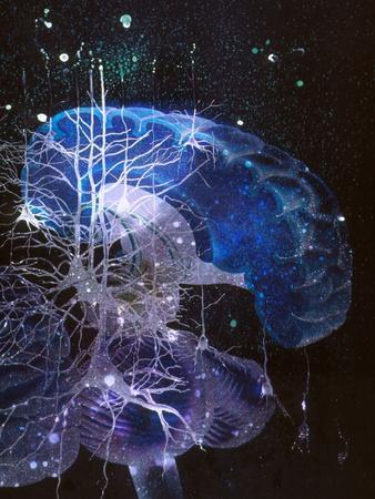 Conceptual Art of Brain & Nerve Cells In Dementia