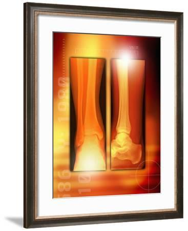 Healing Ankle Fracture, X-ray-Miriam Maslo-Framed Photographic Print