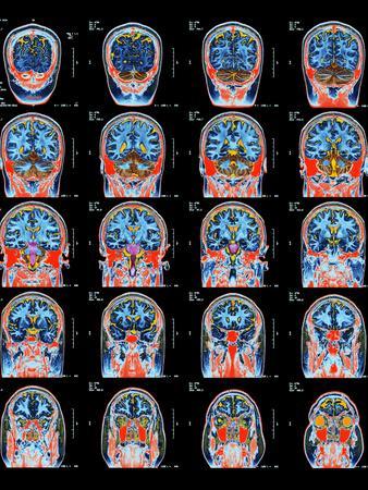 https://imgc.artprintimages.com/img/print/healthy-brain-mri-scans_u-l-pzh8yd0.jpg?p=0