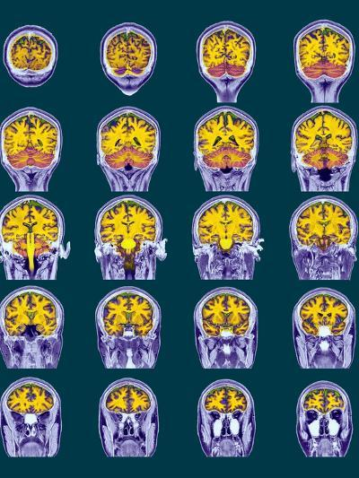 Healthy Brain, MRI Scans-Science Photo Library-Photographic Print