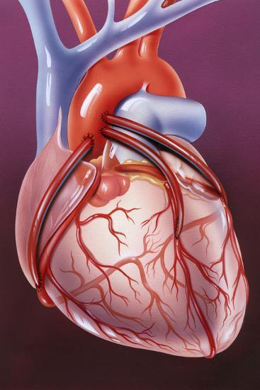 Heart Bypass Grafts-John Bavosi-Photographic Print