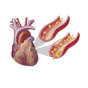 Heart with Arteries Showing Cholesterol in One and Plaque in the Other