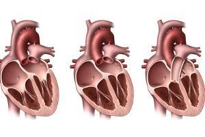 Heart Valves, Artwork by Henning Dalhoff
