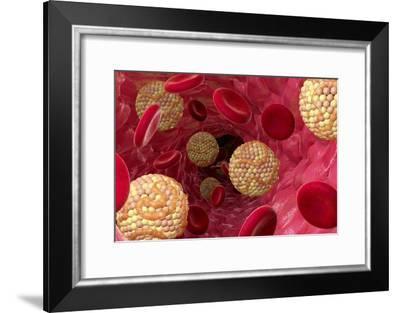 High Cholesterol Levels, Artwork-David Mack-Framed Photographic Print
