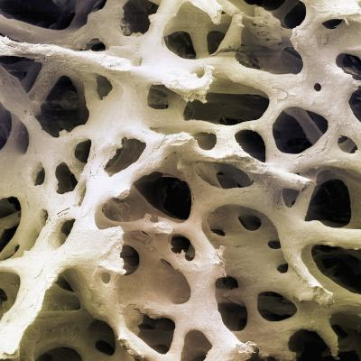 Human Femur Cancellous, Trabecular, or Spongy Bone-Fred Hossler-Photographic Print