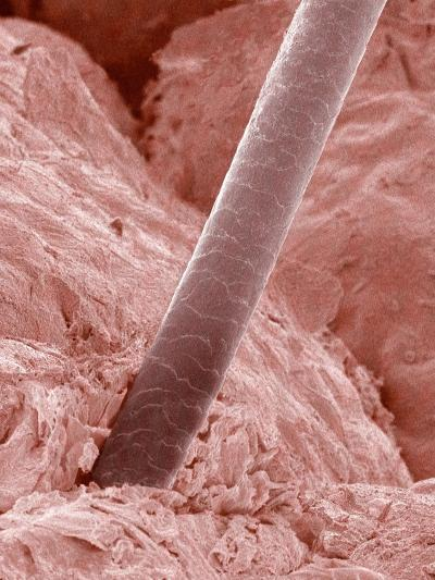 Human Hair and Skin-Micro Discovery-Photographic Print