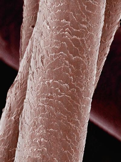 Human Hair-Micro Discovery-Photographic Print