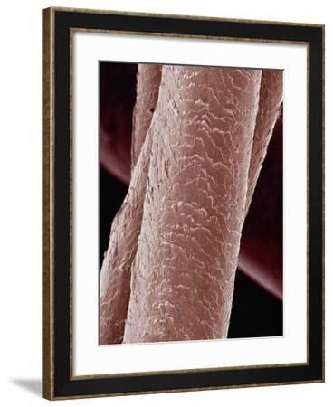 Human Hair-Micro Discovery-Framed Photographic Print