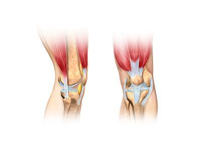 Human Knee Cutaway Illustration--Art Print