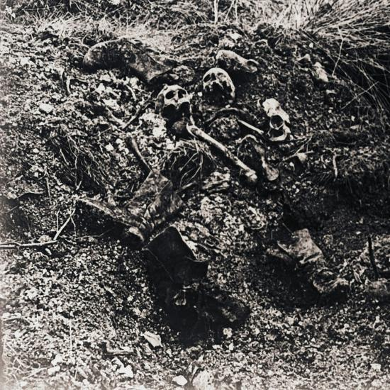 Human remains, c1914-c1918-Unknown-Photographic Print