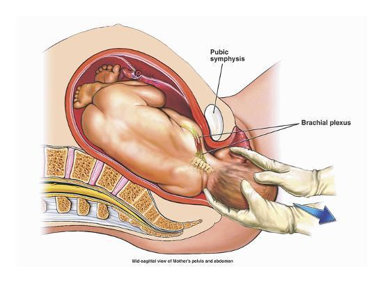 Illustration of a Mid-Line Cut-Away View of a Normal Vaginal Delivery  Giclee Print by Nucleus Medical Art | Art com