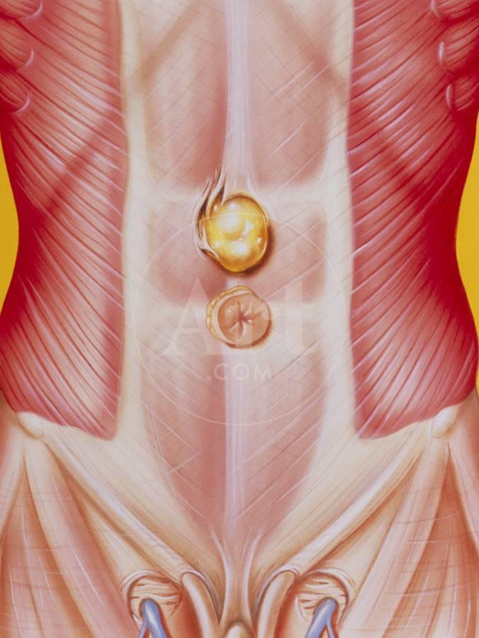 Illustration of An Epigastric (abdominal) Hernia Photographic Print by