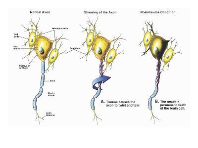Illustration of Brain Neurons Subject to Axonal Shearing-Nucleus Medical Art-Giclee Print