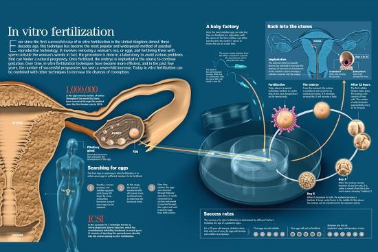 Infographic of in Vitro Fertilization, a Technique Among the Assisted Fertilization Methods--Poster