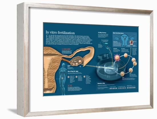Infographic of in Vitro Fertilization, a Technique Among the Assisted Fertilization Methods--Framed Poster
