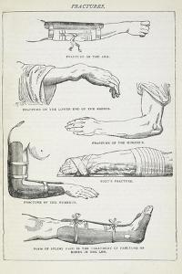 Fractures and Methods Of Bandaging. by Isabella Beeton