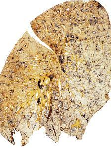 Section of Human Smoker's Lung Showing Tar by James Stevenson