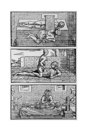 Plate Showing Avicenna's Cure for Spinal Fracture
