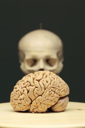 A Human Brain on a Platter in Front of a Human Skeleton Model by Joe Petersburger