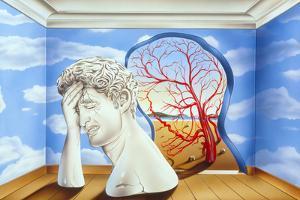 Migraine by John Bavosi