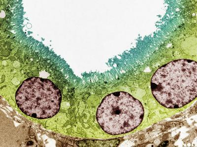 Kidney Tubule, TEM-Steve Gschmeissner-Photographic Print