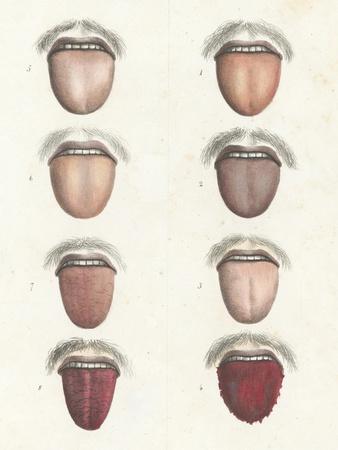 Yellow Fever Symptoms, 19th Century