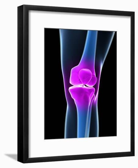 Knee Pain, Conceptual Artwork-SCIEPRO-Framed Photographic Print