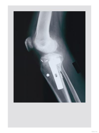 Knee Replacement--Art Print