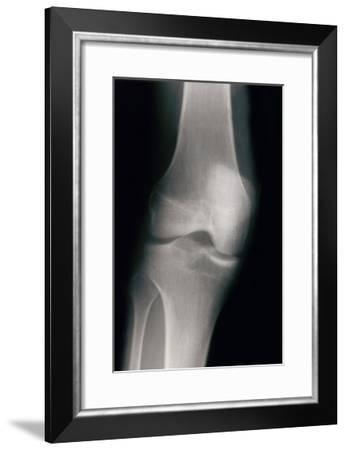 Knee--Framed Art Print
