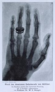 Konrad Roentgen's X-Ray of the Hand of Showing Bones and the Ring, 1895
