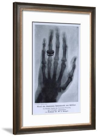 Konrad Roentgen's X-Ray of the Hand of Showing Bones and the Ring, 1895--Framed Photo