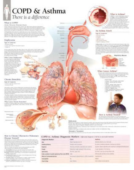 Laminated COPD/Asthma Educational Chart Poster--Laminated Poster