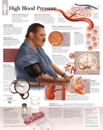 Laminated High Blood Pressure Educational Chart Poster