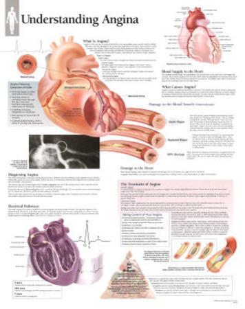 Laminated Understanding Angina Educational Disease Chart Poster