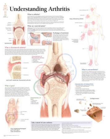 Laminated Understanding Arthritis Educational Chart Poster