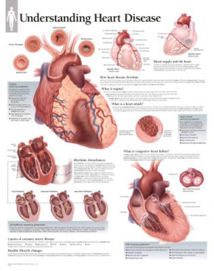 Laminated Understanding Heart Disease Educational Chart Poster--Laminated Poster