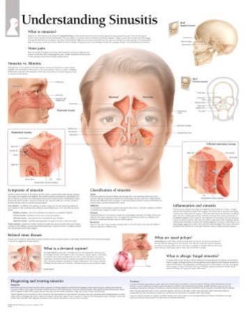 Laminated Understanding Sinusitis Educational Chart Poster